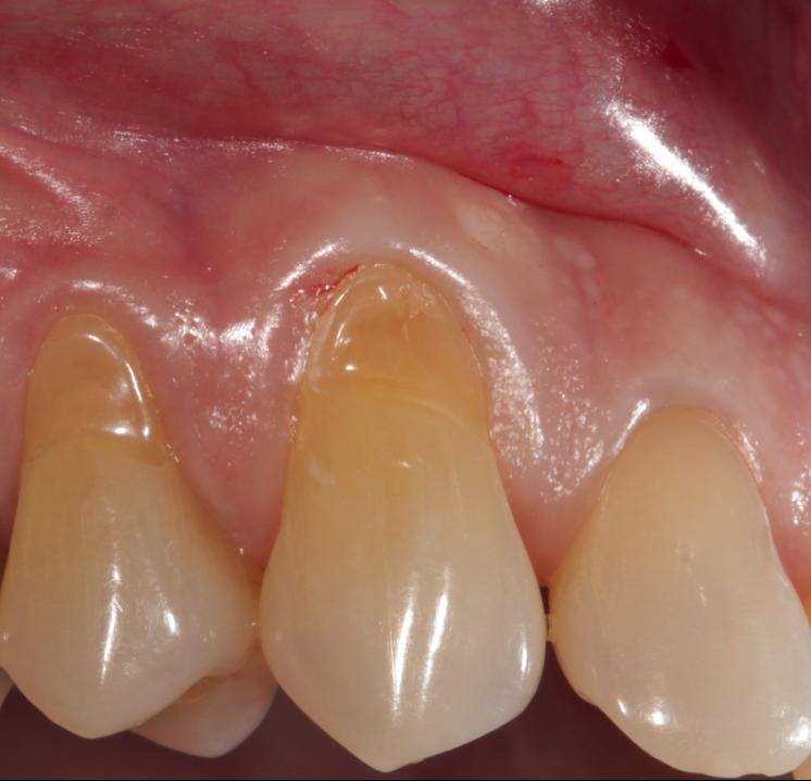 Leeftijdsveranderingen in tanden